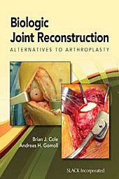 SIAECM Scaffale: Brian Cole and Andreas Gomoll: Biologic Joint Reconstruction  - Alternatives to Joint Arthroplasty